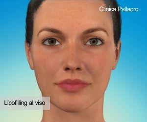 Risultato del lipofilling al viso