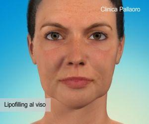Lipofillig viso