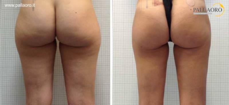 liposuzione glutei, cosce e gambe 0002