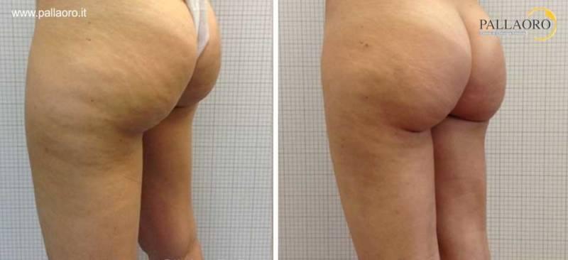 liposuzione glutei gambe 0006