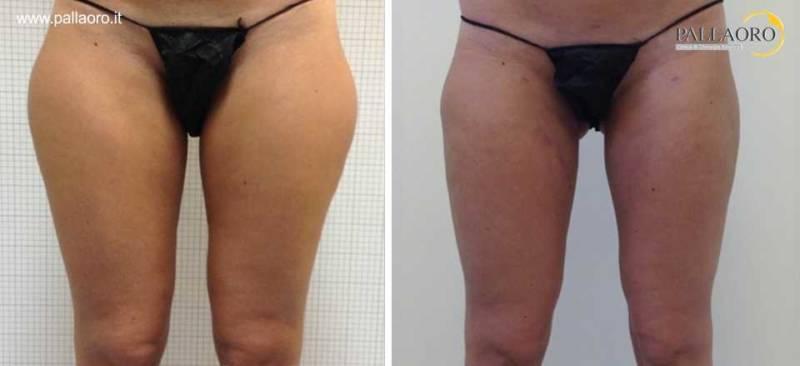 liposuzione cosce gambe 0011