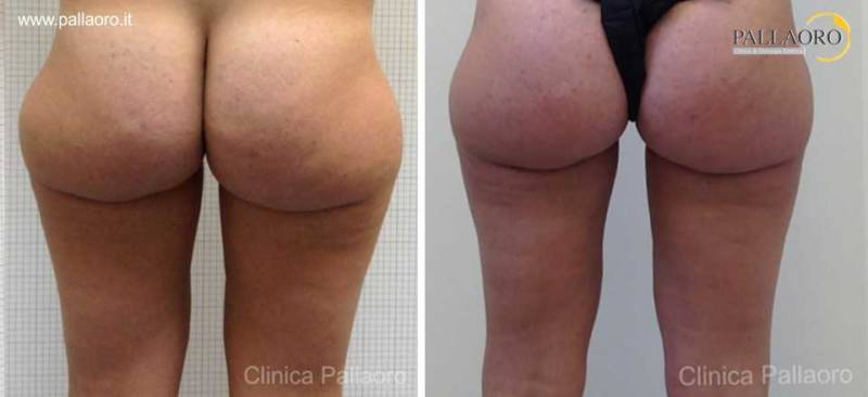 liposuzione cosce glutei gambe 0030