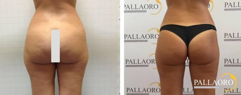liposuzione foto prima dopo su Clinica Pallaoro