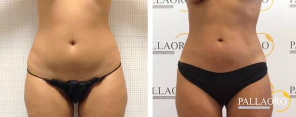 Liposuzione trento > Addome cosce e fianchi