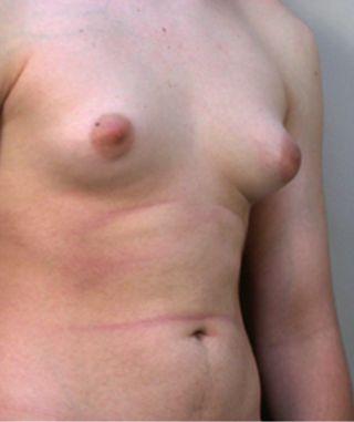liposuzione addome ginecomastia foto 01