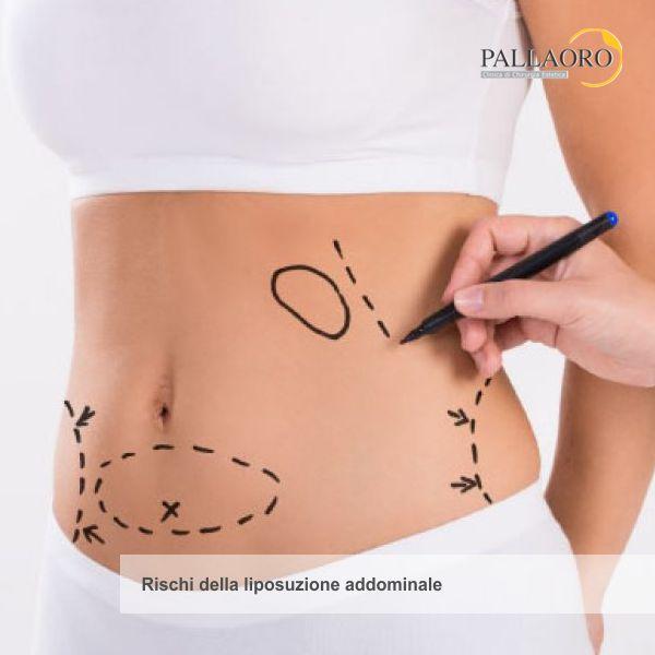 liposuzione addominale rischi