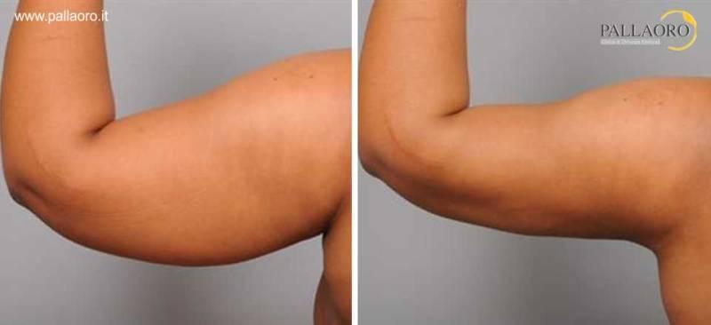 liposuzione braccia 0014