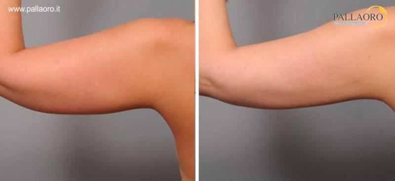 liposuzione braccia 0015