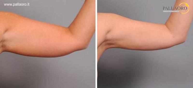 liposuzione braccia 0016