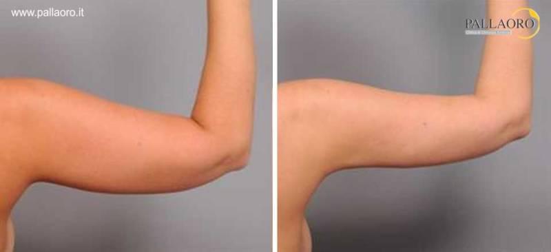 liposuzione braccia 0017