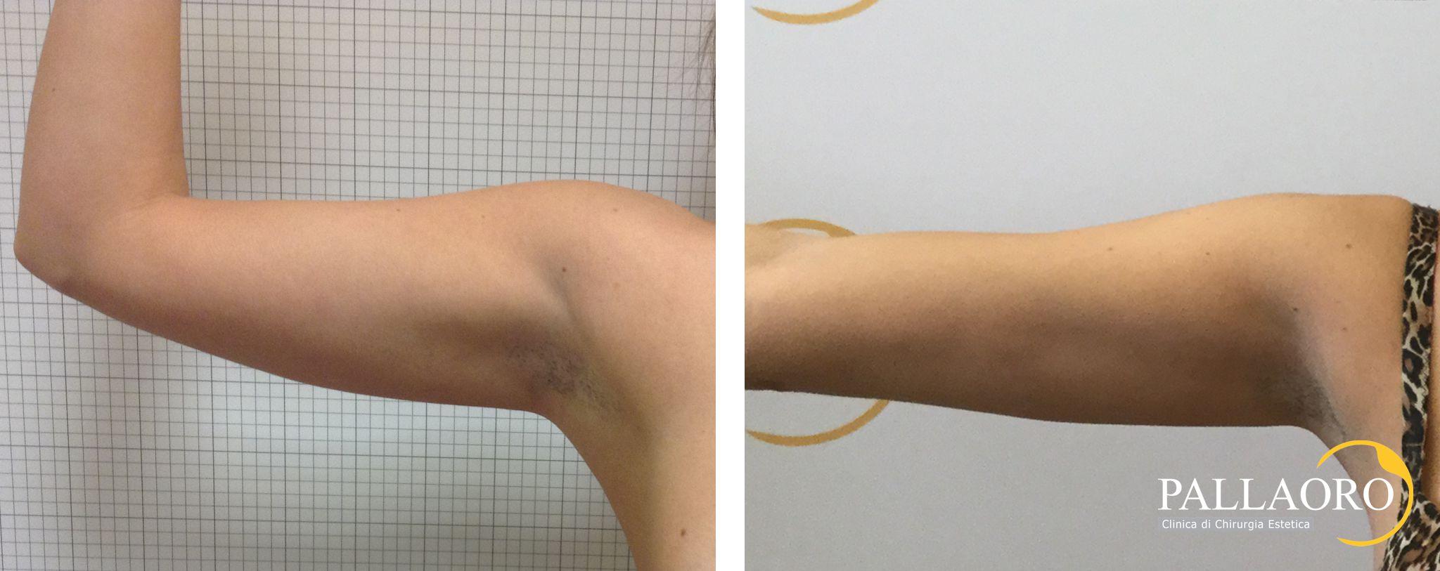liposuzione risultati foto braccia