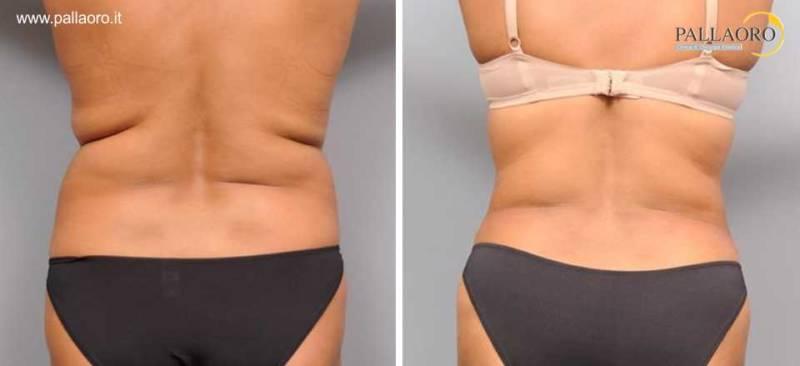liposuzione fianchi donna 0092