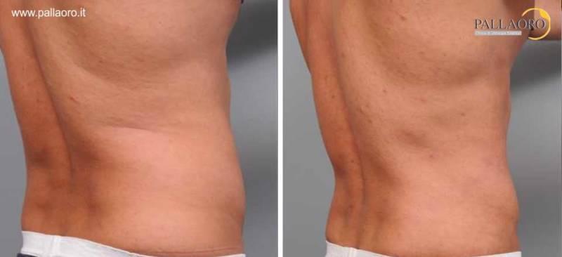 liposuzione addome fianchi schiena uomo 0091