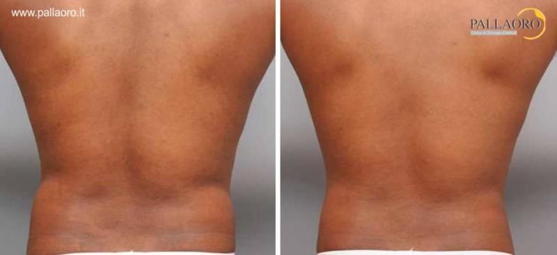 liposuzione schiena fianchi 0092
