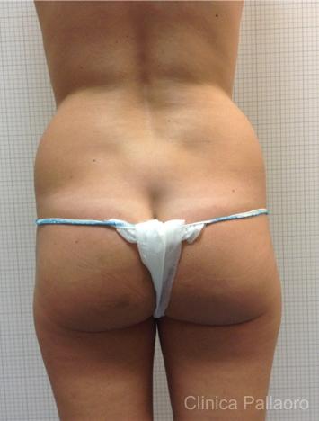 Liposuzione: Foto prima
