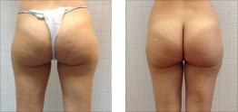 Liposuzione foto: Glutei, esterno cosce e gambe