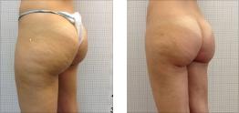 Liposuzione foto: Glutei, cosce e gambe