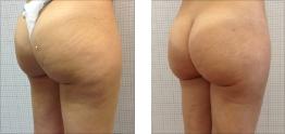 Liposuzione gambe e glutei: foto
