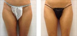 Liposuzione gambe: foto
