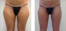Liposuzione foto: Cosce e gambe