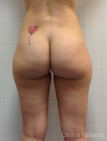 Liposuzione foto