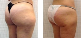 Liposuzione glutei e gambe: Foto
