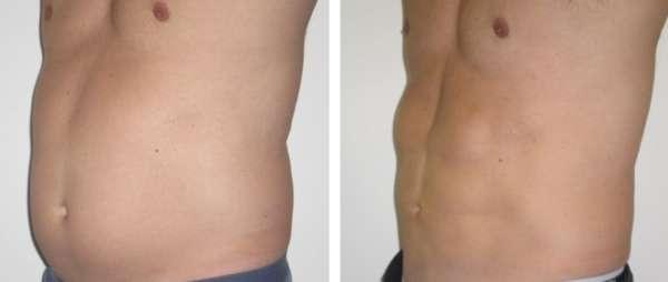 liposuzione addome maschile / uomo 005