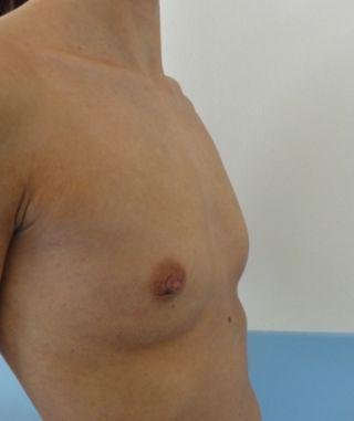 liposuzione mastoplastica additiva foto 01