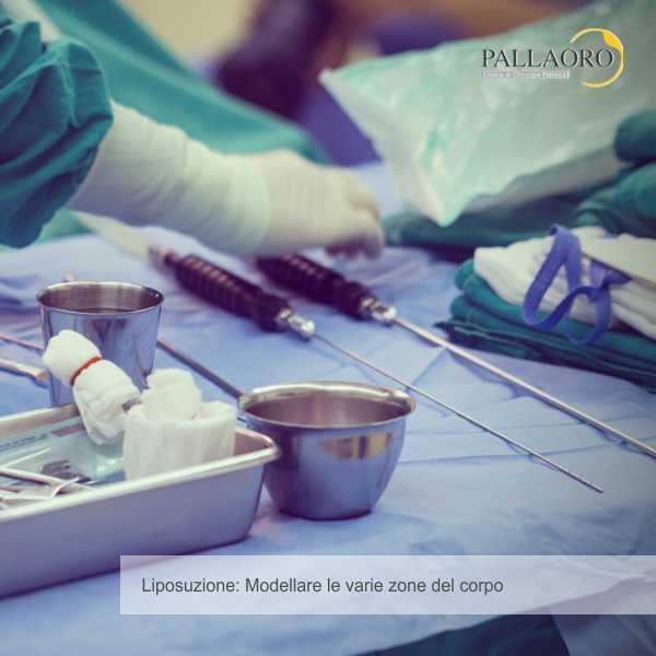 liposuzione zone intervento