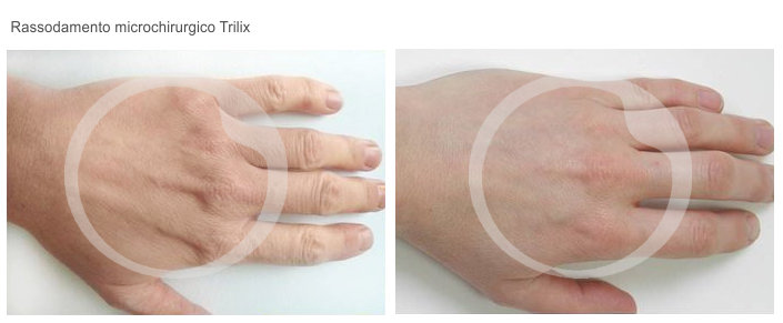 Rassodamento microchirurgico mani