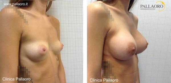 Chirurgia estetica seno Foto di mastoplastica additiva 02
