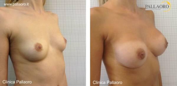 Chirurgia estetica seno Foto di mastoplastica additiva 03