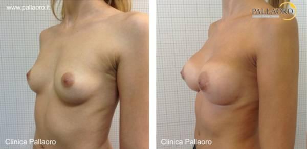 Chirurgia estetica seno Foto di mastoplastica additiva 04