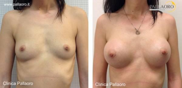 Chirurgia estetica seno Foto di mastoplastica additiva 05