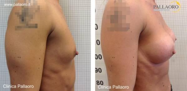 Chirurgia estetica seno Foto di mastoplastica additiva 07