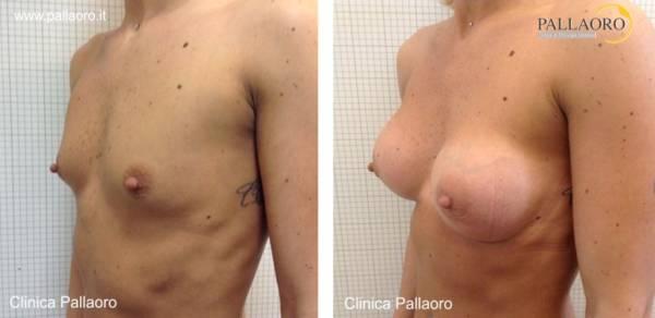 Chirurgia estetica seno Foto di mastoplastica additiva 08