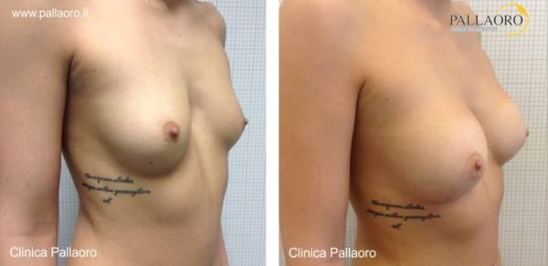 Chirurgia estetica seno Foto di mastoplastica additiva 09