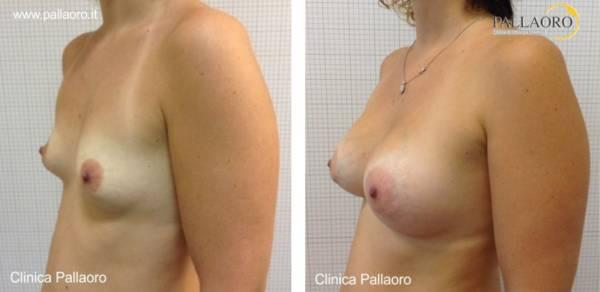 Chirurgia estetica seno Foto di mastoplastica additiva 10