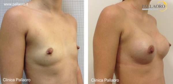 Chirurgia estetica seno Foto di mastoplastica additiva 12