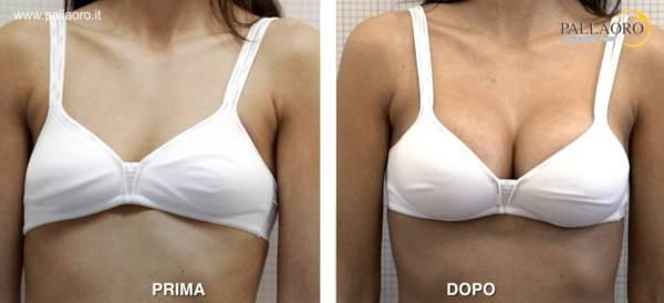 Chirurgia estetica seno Foto di mastoplastica additiva 16