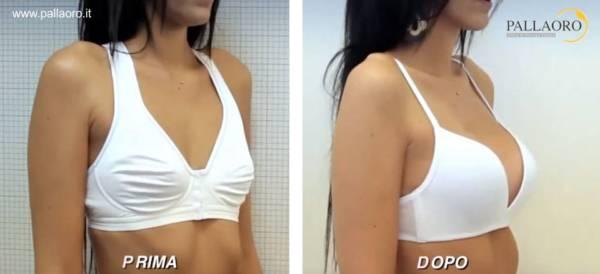 Chirurgia estetica seno Foto di mastoplastica additiva 21