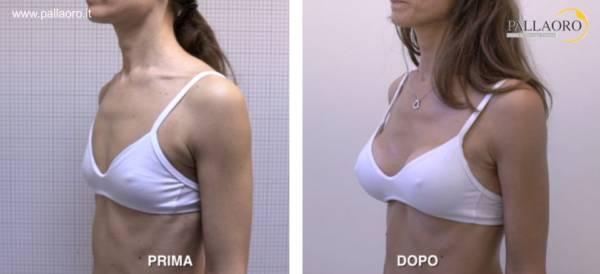 Chirurgia estetica seno Foto di mastoplastica additiva 25
