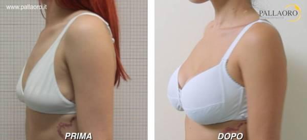 Chirurgia estetica seno Foto di mastoplastica additiva 28