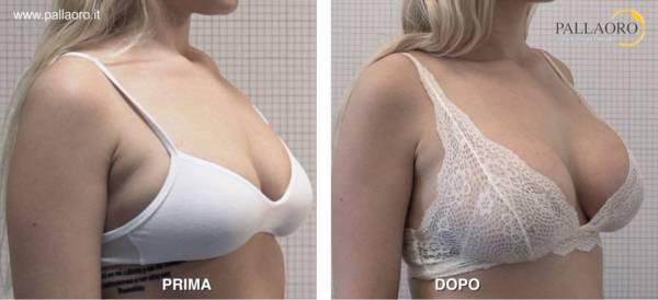 Chirurgia estetica seno Foto di mastoplastica additiva 30