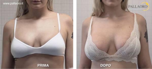 Chirurgia estetica seno Foto di mastoplastica additiva 32