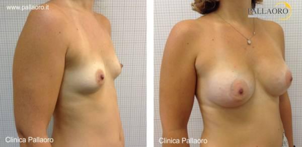 Chirurgia estetica seno Foto di mastoplastica additiva 34
