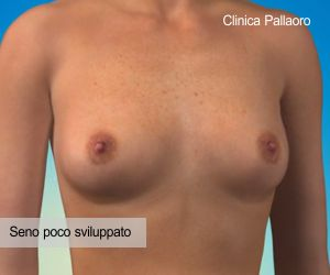 mastoplastica additiva seno ipotrofico