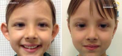 chirurgia estetica viso: orecchie