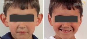 modellamento orecchie a sventola bambino