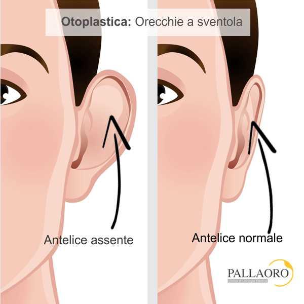 otoplastica: inestetismo e correzione